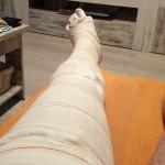 La pierna escayolada de Roberto Martín tras su lesión